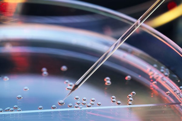 What is Stem Cell Treatment?