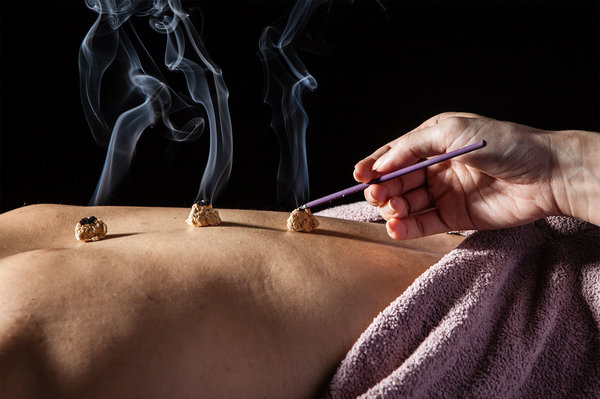 The Benefits Of Moxibustion